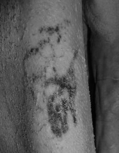 Oldest Tattoo Mummy